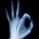 Salud Ósea: La verdad sobre los frágiles huesos
